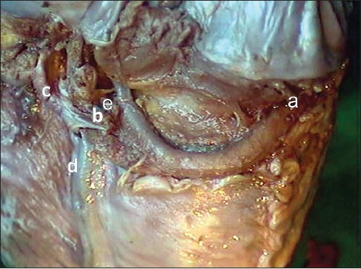 Small Cardiac Vein further Pa Caudal Key besides Re mendedradiographicprojections likewise Coronary Circulation Left Coronary Artery together with Right Coronary Artery Rt A V Sulcus Rt Dominant Balanced. on coronary artery anatomy branches
