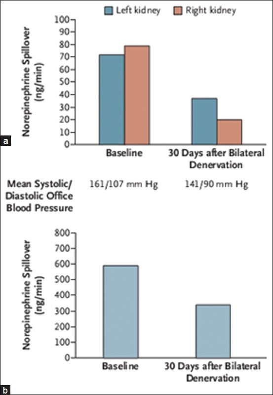 Figure 3: Effects of renal denervation on norepinephrine spillover (Panel A-Renal and Panel B-Whole body) at baseline & 30 days