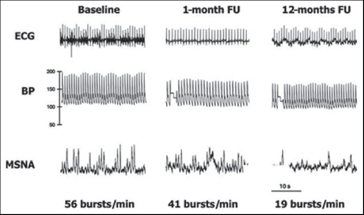 Figure 4: Effect of renal sympathetic denervation on muscle sympathetic nerve activity over 12 months of follow-up. BP = blood pressure