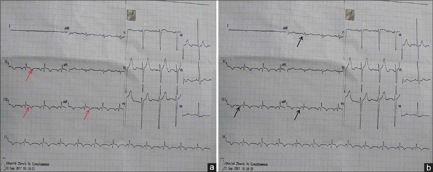 Figure 1: (a) 12-lead electrocardiogram at presentation showing ST elevation and T wave inversion in inferior leads (red arrows). (b) Relook at 12-lead electrocardiogram revealed inverted P wave in inferior leads and positive P wave in lead aVR (black arrows)