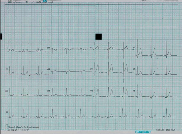 Figure 2: 12-lead electrocardiogram after correct limb lead placement showing absence of ST-T changes and corrected P wave polarity