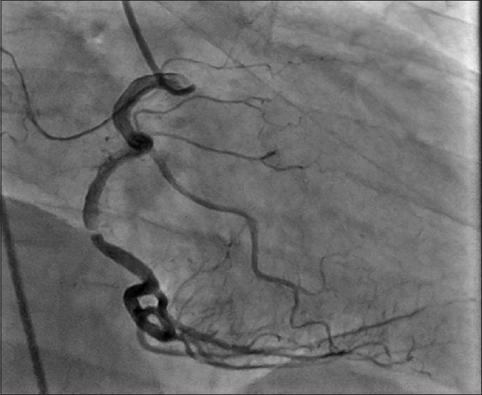 Figure 2: RAO view showing mid right coronary artery 99% stenosis